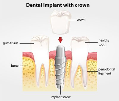 Dental Implants Downers Grove