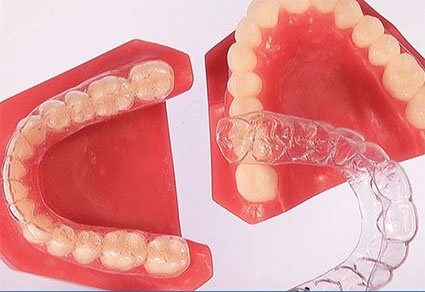 Invisible Braces Downers Grove