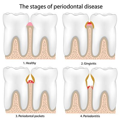 periodontal disease dentist
