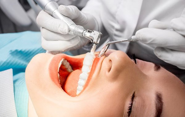 Teeth Cleaning Downers Grove