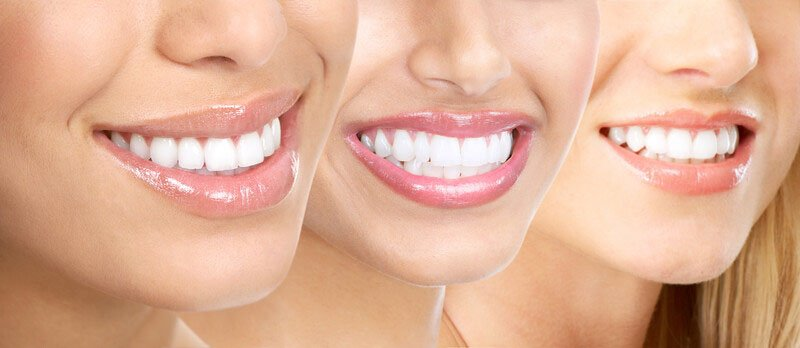 Teeth Whitening in Downers Grove