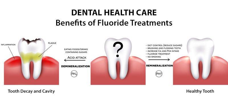 Benefits of Fluoride